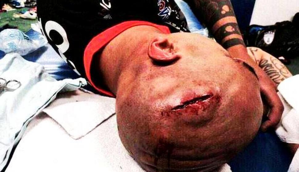 Resultado de imagen para ariel nahuelpan herida