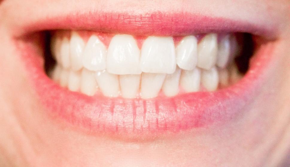 Los dientes humanos cuentan la historia de la humanidad a través de ...