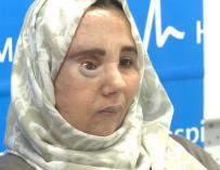 Samira volverá a Marruecos para comenzar su nueva vida tras ser operada de un tumor que le deformó el rostro
